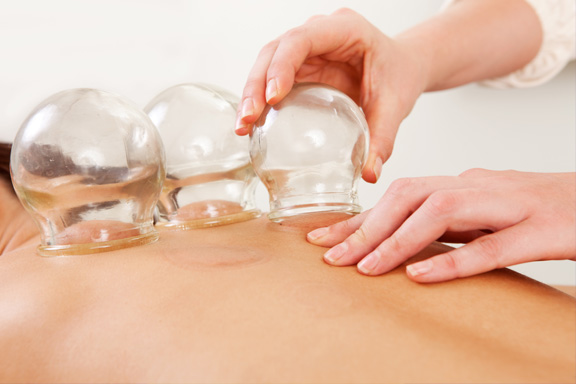 We are pleased to now offer Cupping
